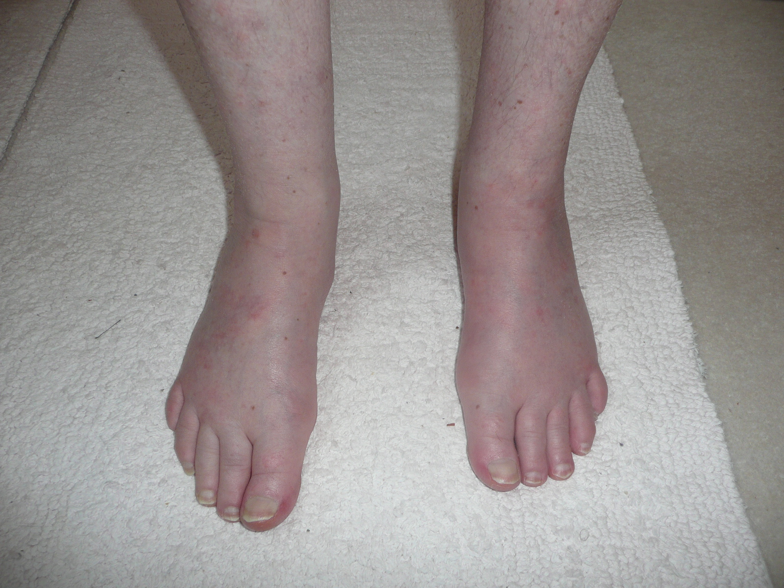Feet less swollen